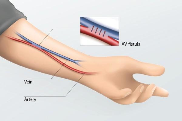 Arteriovenous fistula cannulation