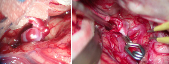 Clipping of cerebral aneurysm