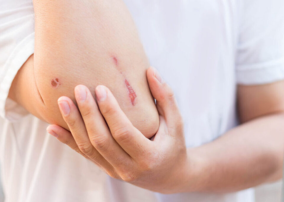 Wound Healing with laser therapy
