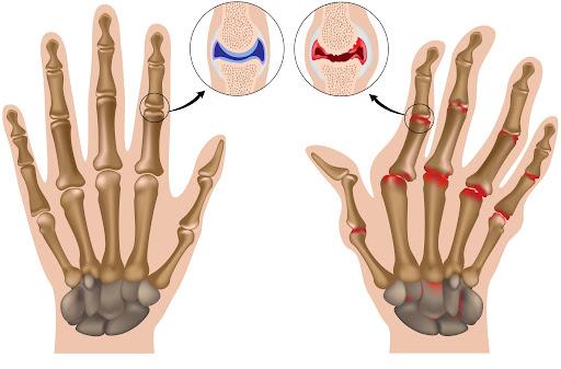 Hand osteoarthritis rehabilitation