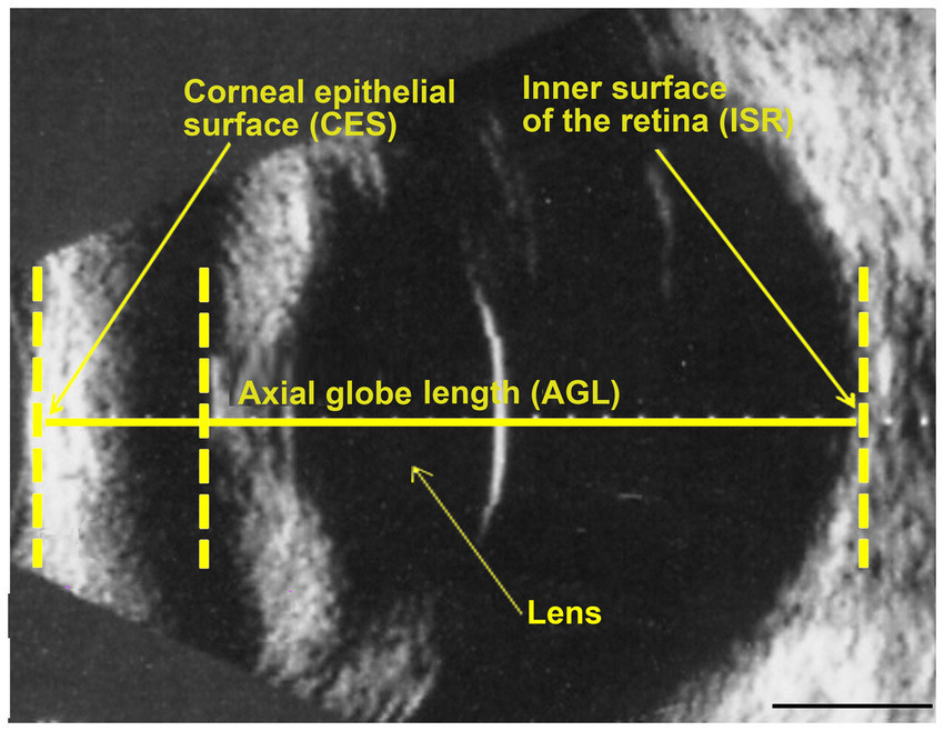 ophtalmic ultrasound of a dog's eyball